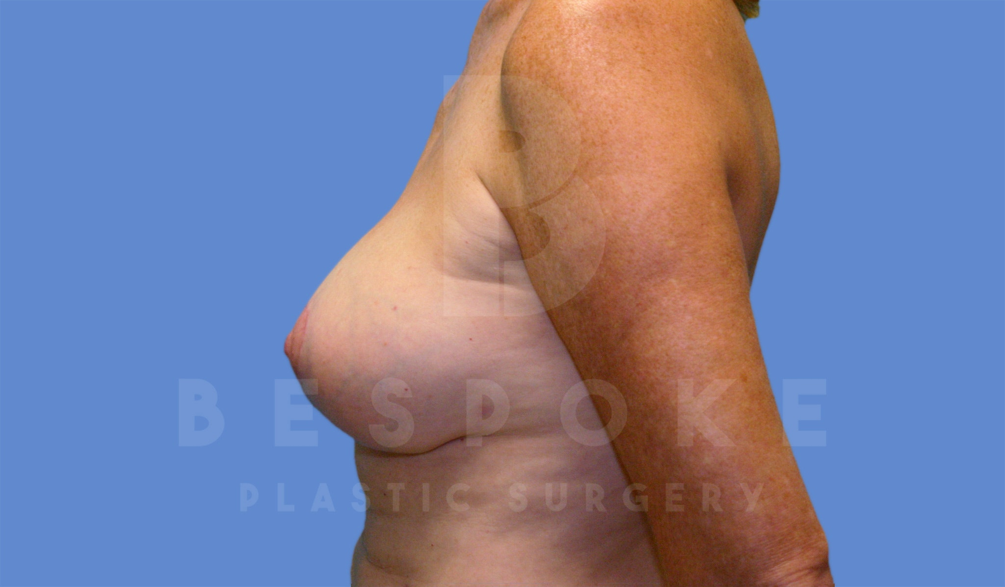 Breast Lift With Implants Gallery - Patient 4600007 - Image 4