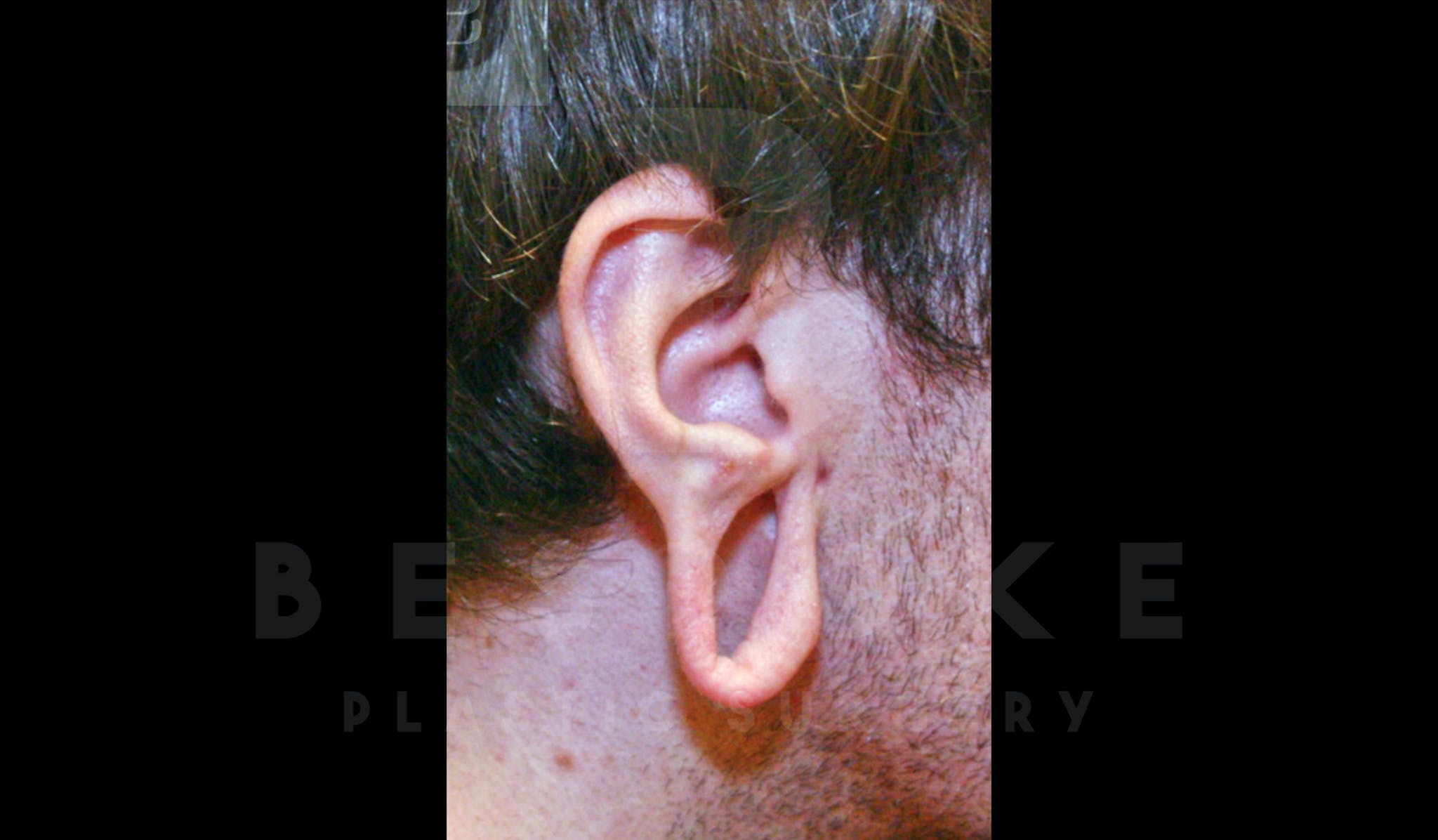 Ear lobe Contouring Gallery - Patient 4600010 - Image 1