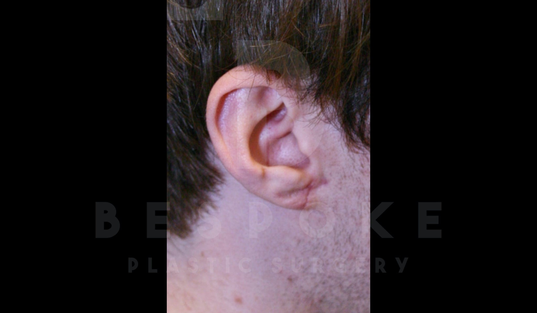 Ear lobe Contouring Gallery - Patient 4600010 - Image 2