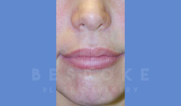 Fillers Gallery - Patient 4600012 - Image 1