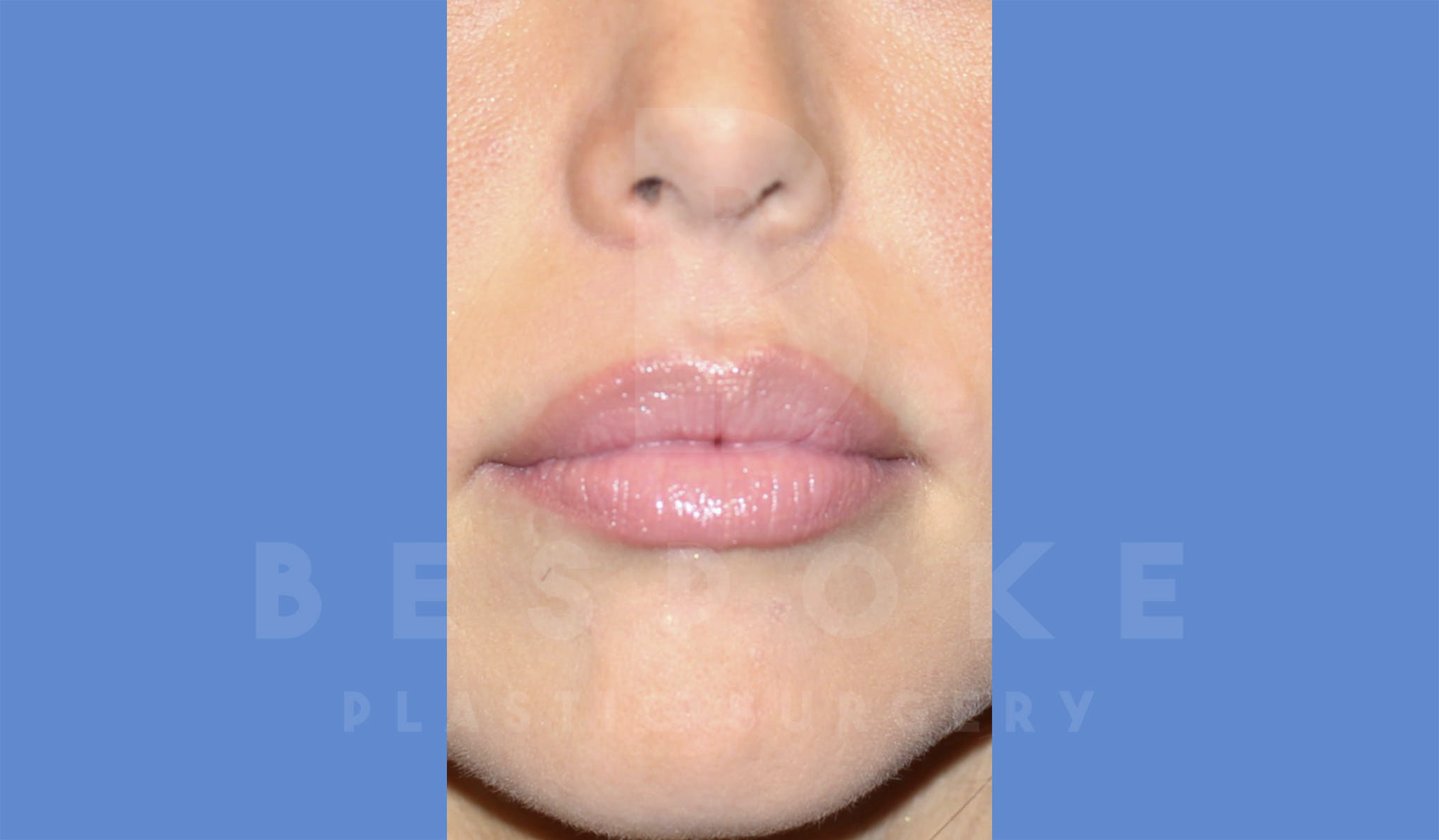 Fillers Gallery - Patient 4600012 - Image 2