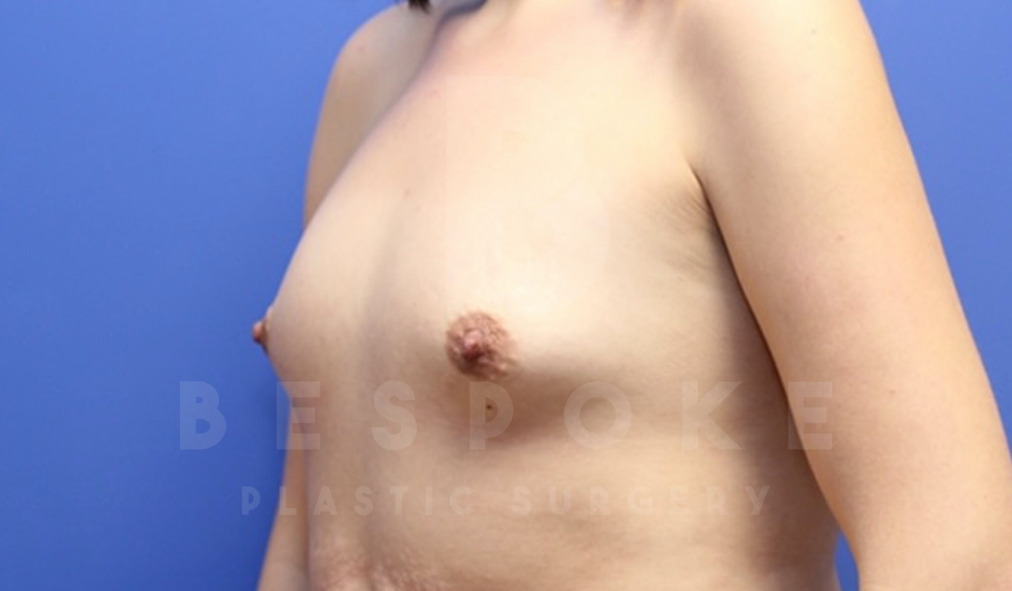 Mommy Makeover Gallery - Patient 4600014 - Image 3
