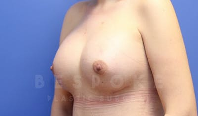 Mommy Makeover Gallery - Patient 4600014 - Image 4