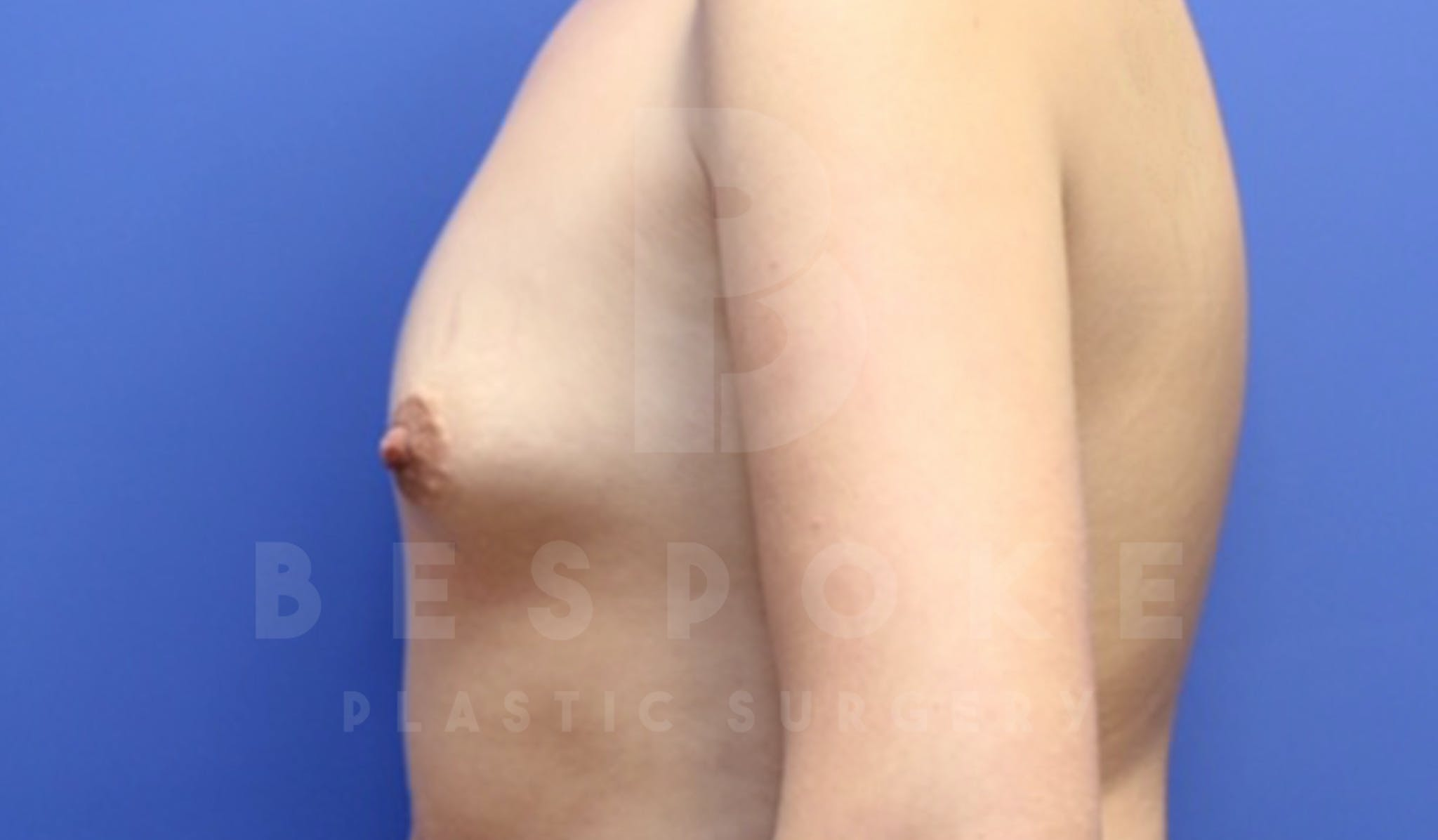 Mommy Makeover Gallery - Patient 4600014 - Image 5