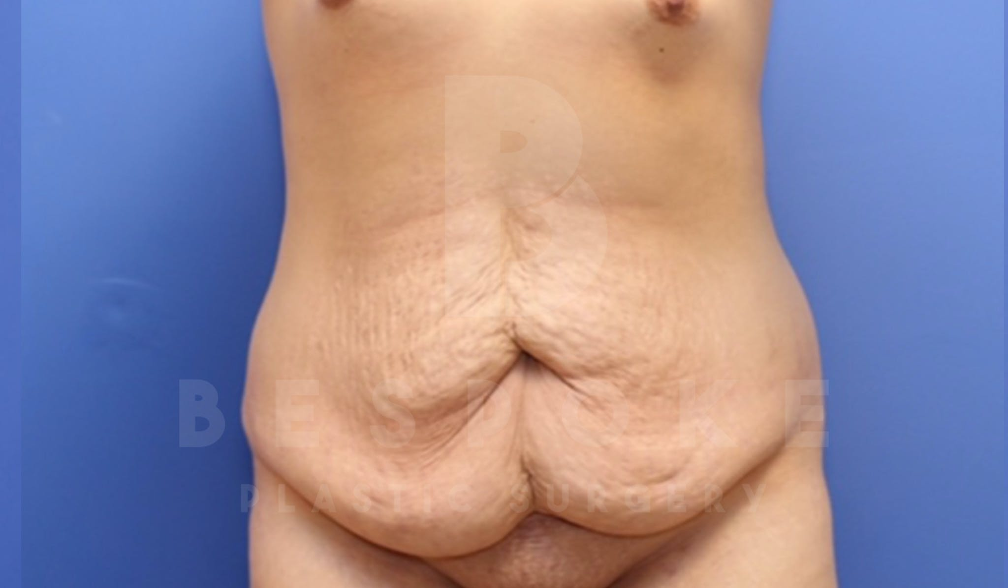 Mommy Makeover Gallery - Patient 4600014 - Image 7