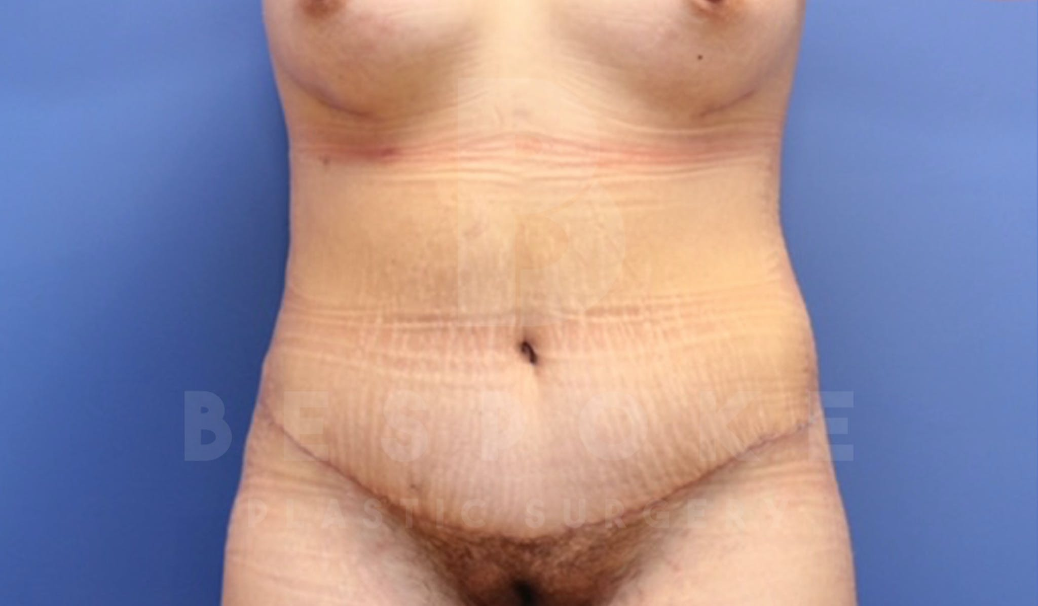 Mommy Makeover Gallery - Patient 4600014 - Image 8