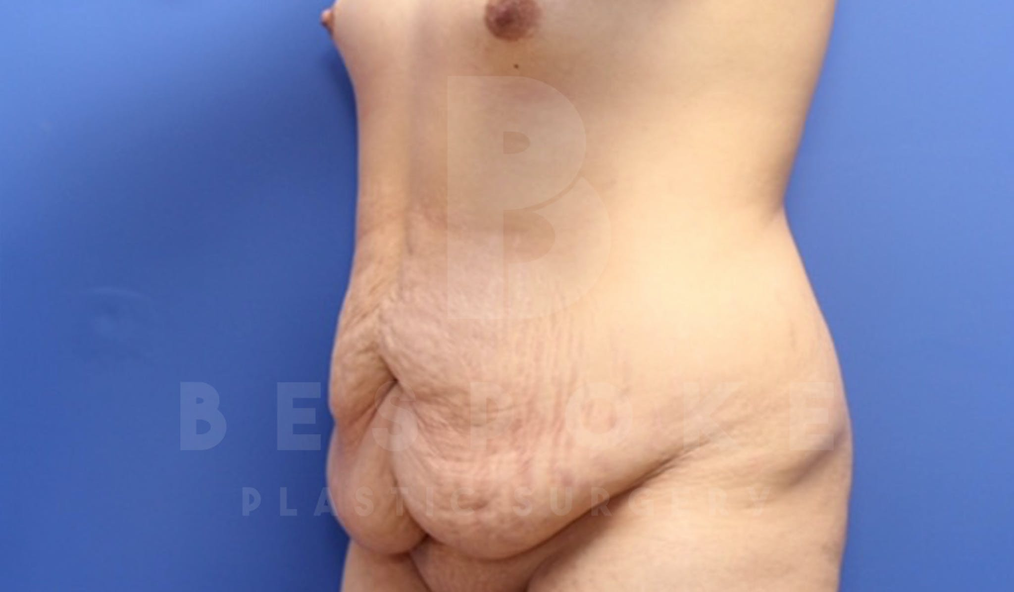 Mommy Makeover Gallery - Patient 4600014 - Image 9