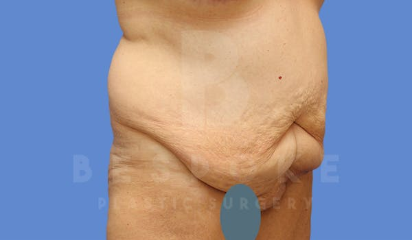 Tummy Tuck Gallery - Patient 4600015 - Image 3