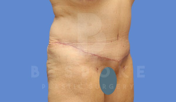 Tummy Tuck Gallery - Patient 4600015 - Image 4