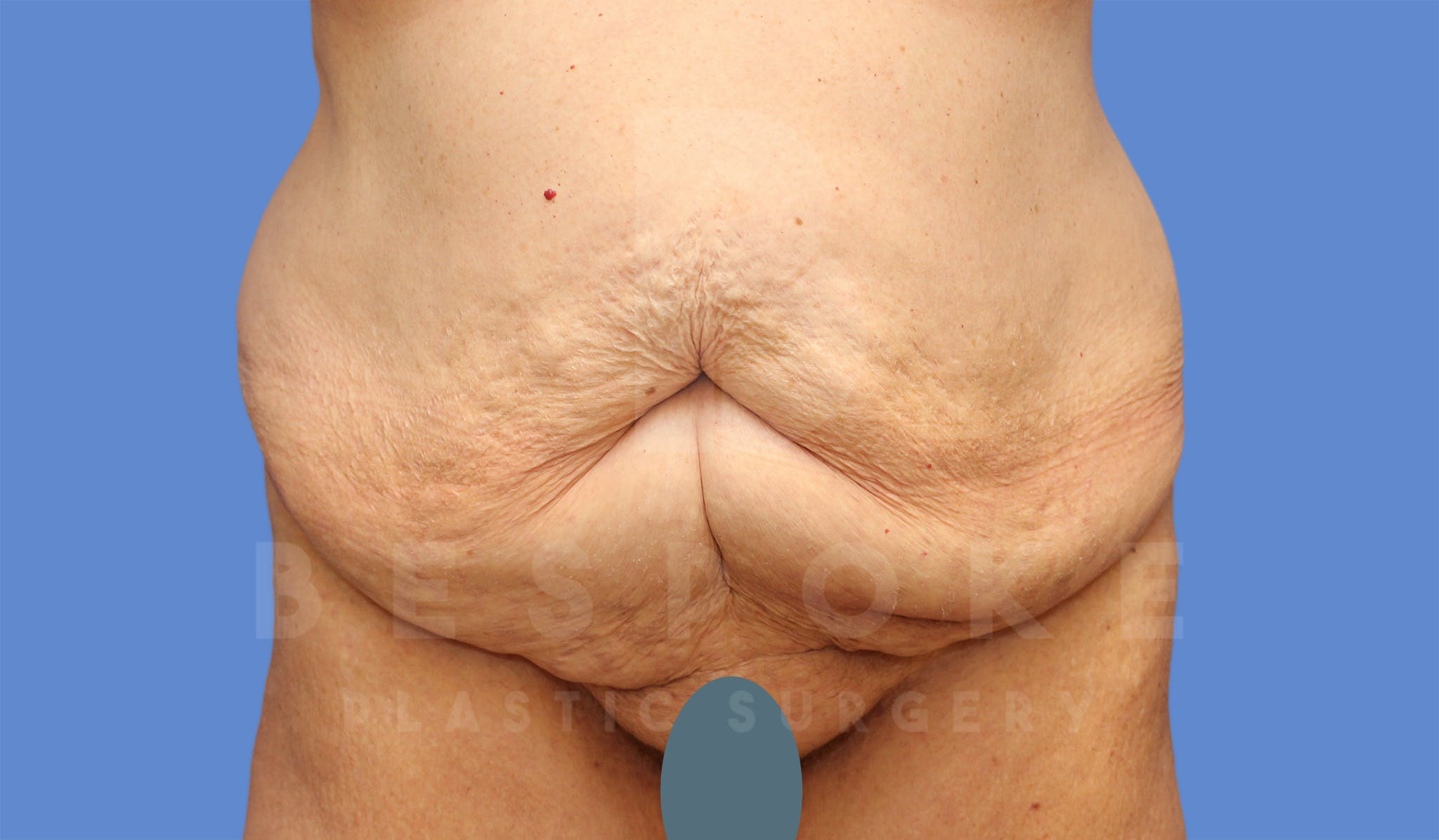 Tummy Tuck Gallery - Patient 4600015 - Image 1