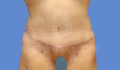 Tummy Tuck Gallery - Patient 4600015 - Image 2