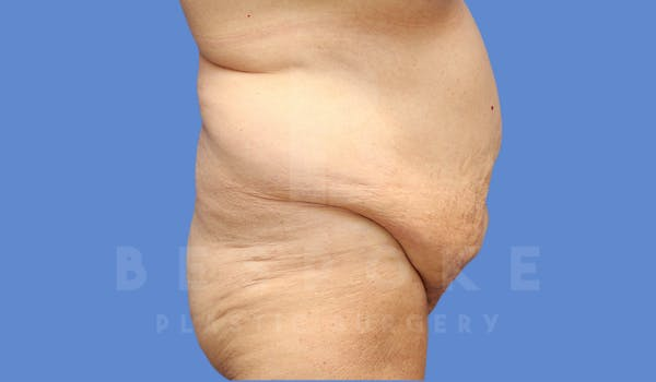Tummy Tuck Gallery - Patient 4600015 - Image 5