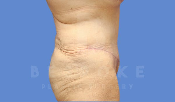 Tummy Tuck Gallery - Patient 4600015 - Image 6