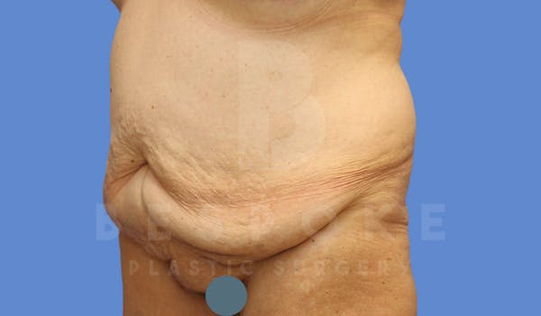 Tummy Tuck Gallery - Patient 4600015 - Image 7