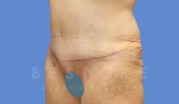 Tummy Tuck Gallery - Patient 4600015 - Image 8