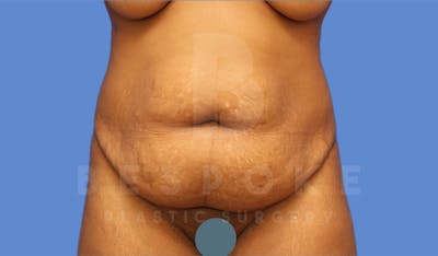 Tummy Tuck Gallery - Patient 4600016 - Image 1