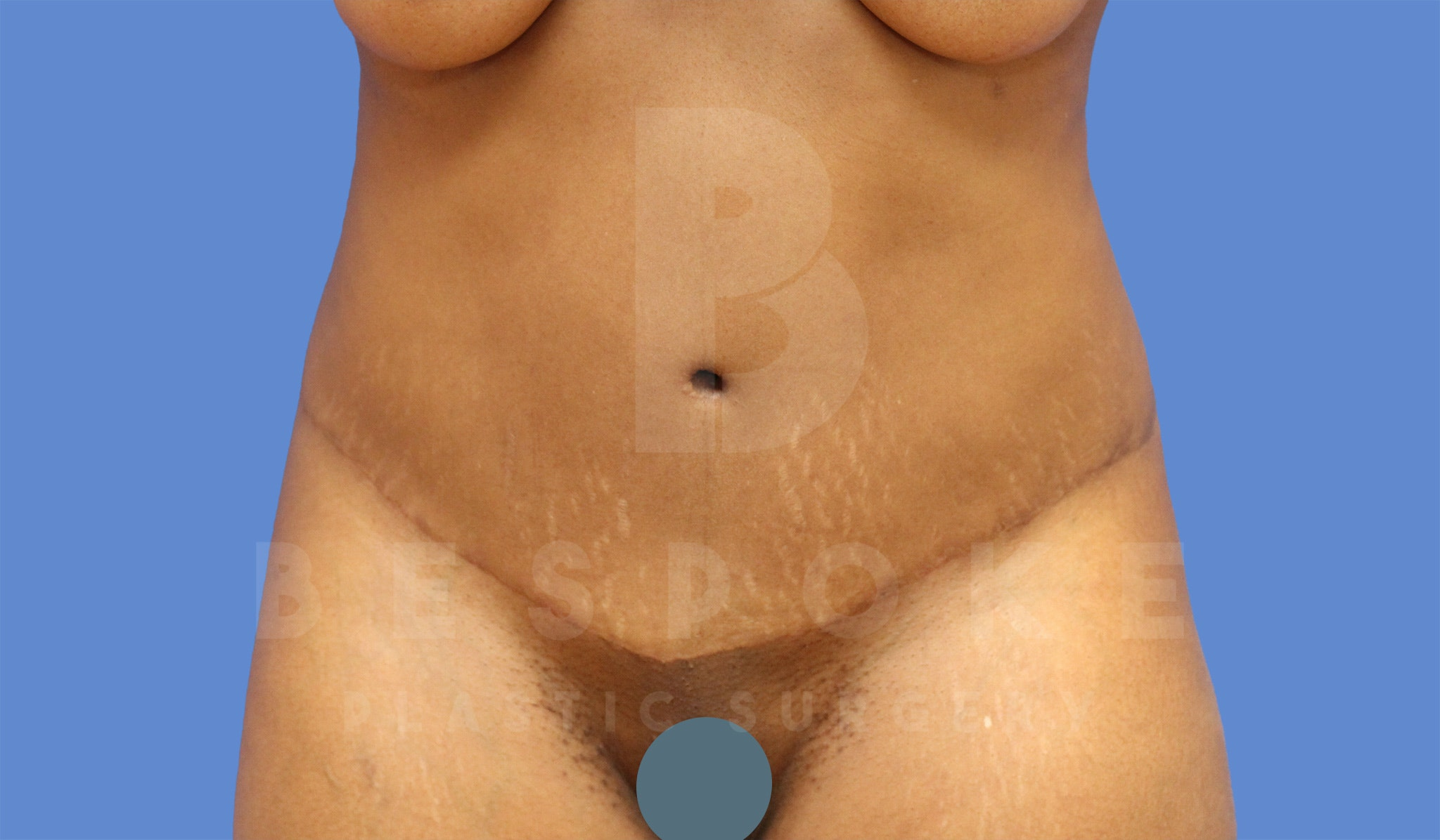 Tummy Tuck Gallery - Patient 4600016 - Image 2
