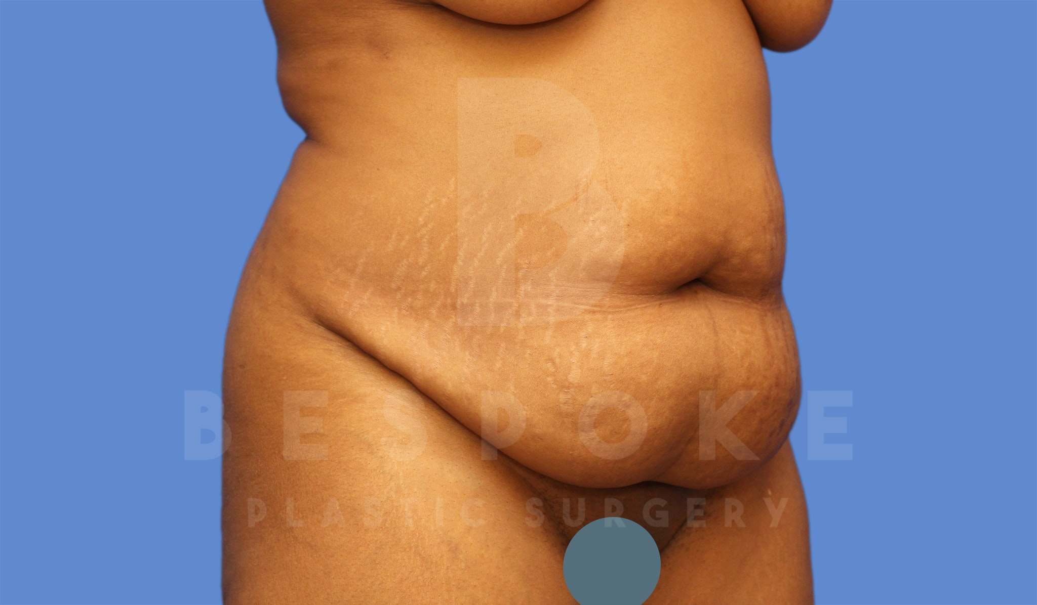 Tummy Tuck Gallery - Patient 4600016 - Image 3