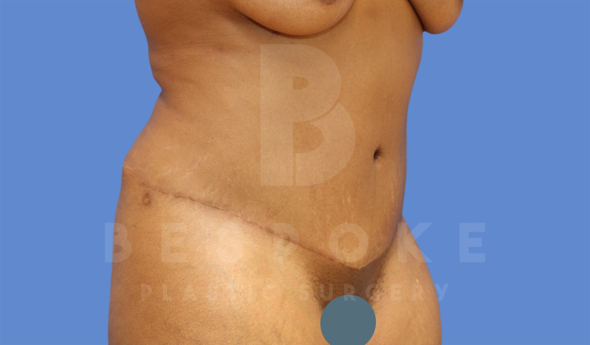 Tummy Tuck Gallery - Patient 4600016 - Image 4