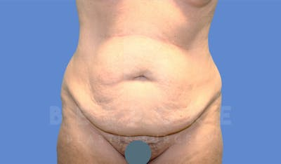 Tummy Tuck Gallery - Patient 4600017 - Image 1