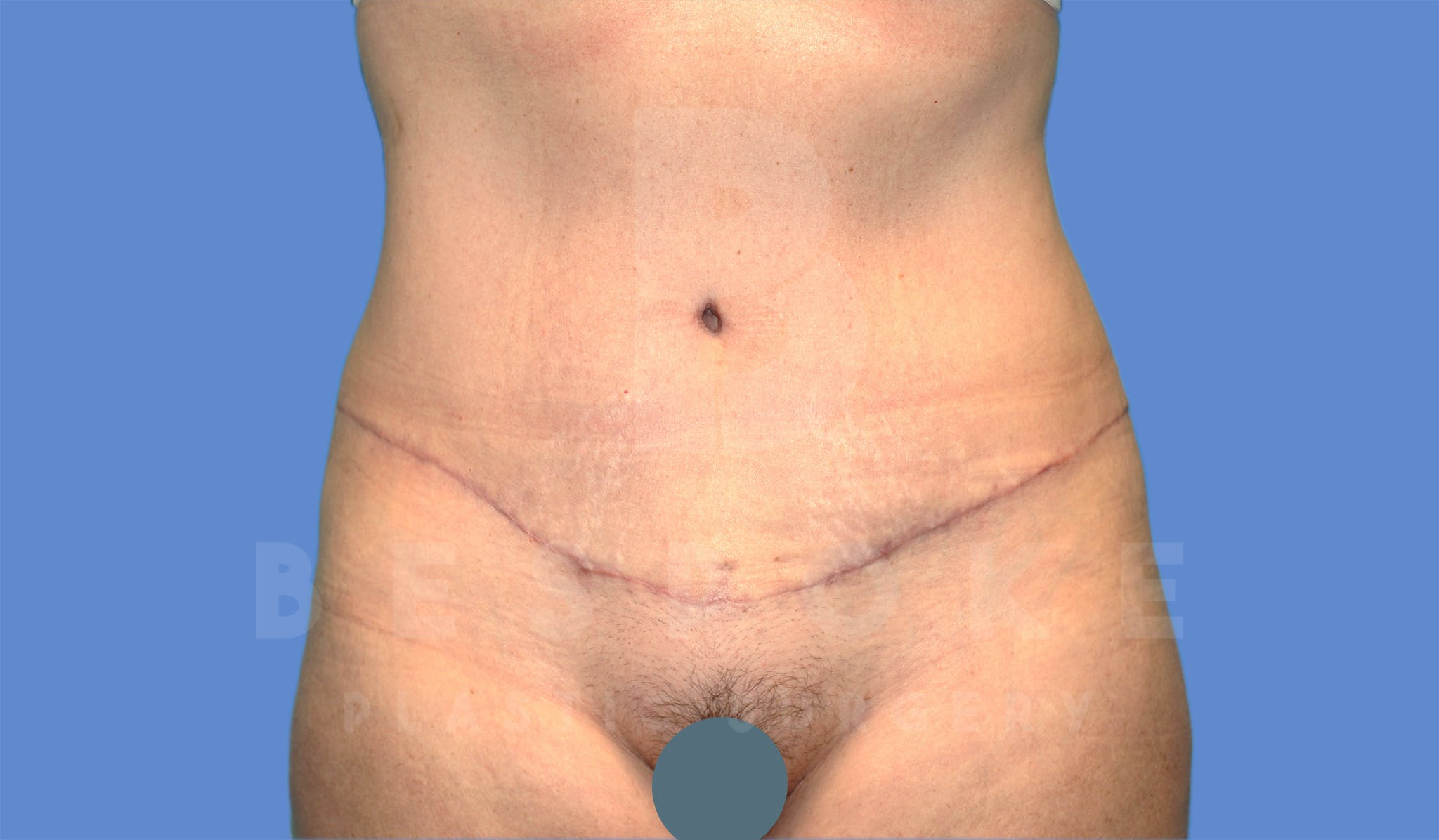 Tummy Tuck Gallery - Patient 4600017 - Image 2