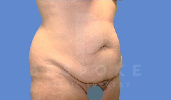 Tummy Tuck Gallery - Patient 4600017 - Image 3