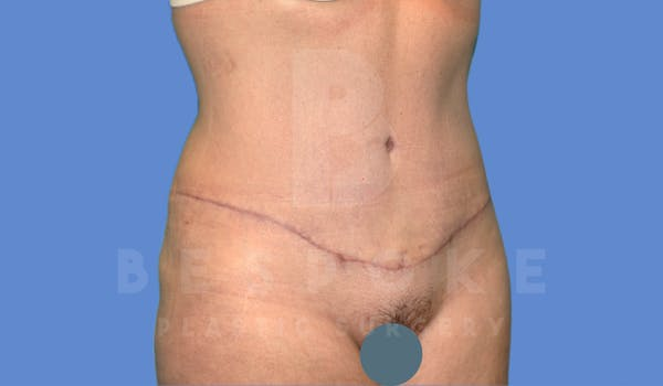 Tummy Tuck Gallery - Patient 4600017 - Image 4