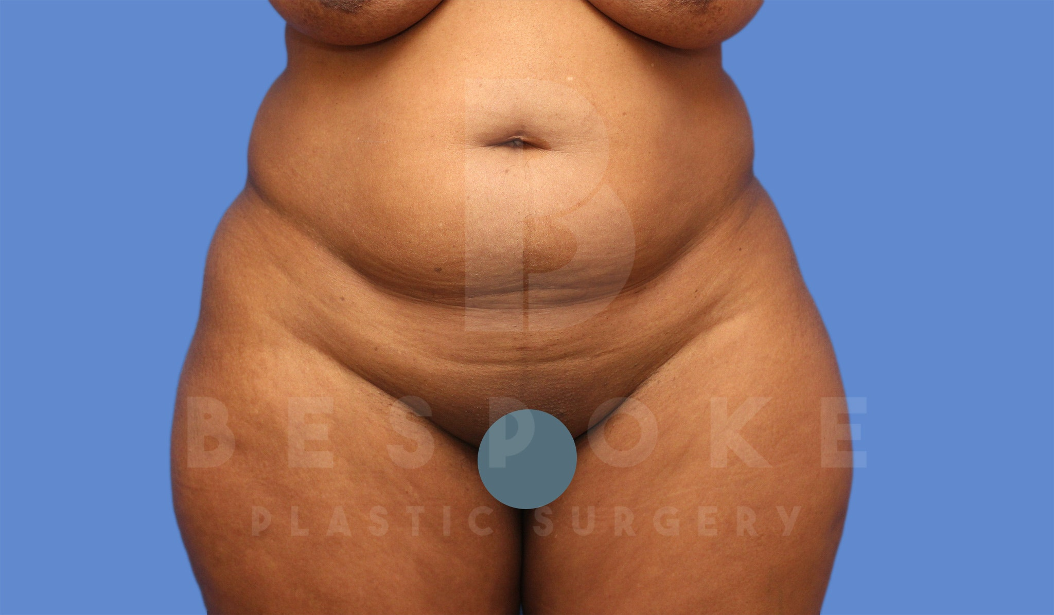 Tummy Tuck Gallery - Patient 4600018 - Image 1