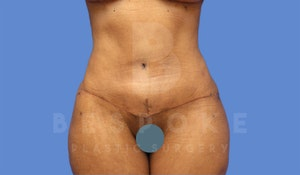 Before & After Tummy Tuck Charlotte NC