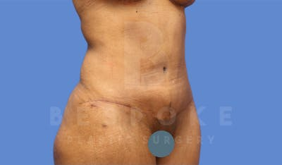 Tummy Tuck Gallery - Patient 4600018 - Image 4