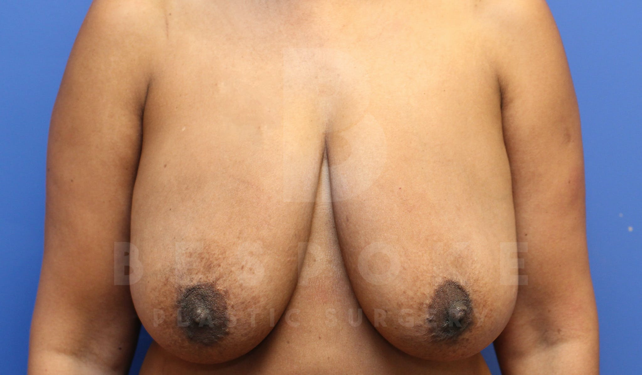 Massive Weight Loss Gallery - Patient 4600025 - Image 1