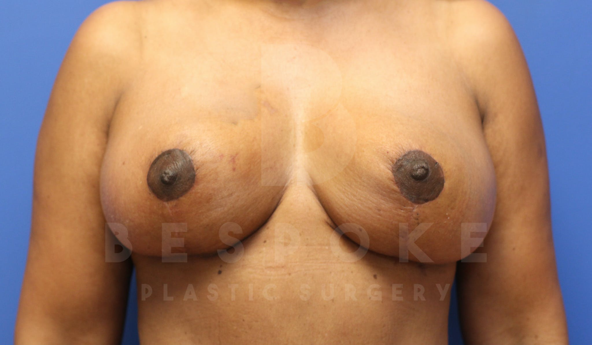 Massive Weight Loss Gallery - Patient 4600025 - Image 2