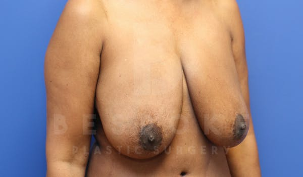 Massive Weight Loss Gallery - Patient 4600025 - Image 3
