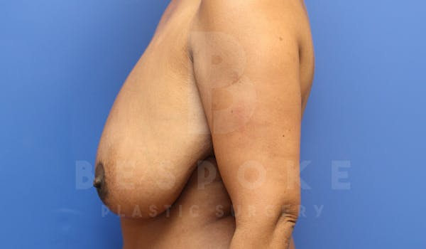 Massive Weight Loss Gallery - Patient 4600025 - Image 5