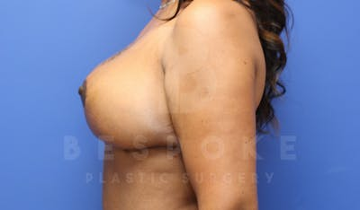 Massive Weight Loss Gallery - Patient 4600025 - Image 6