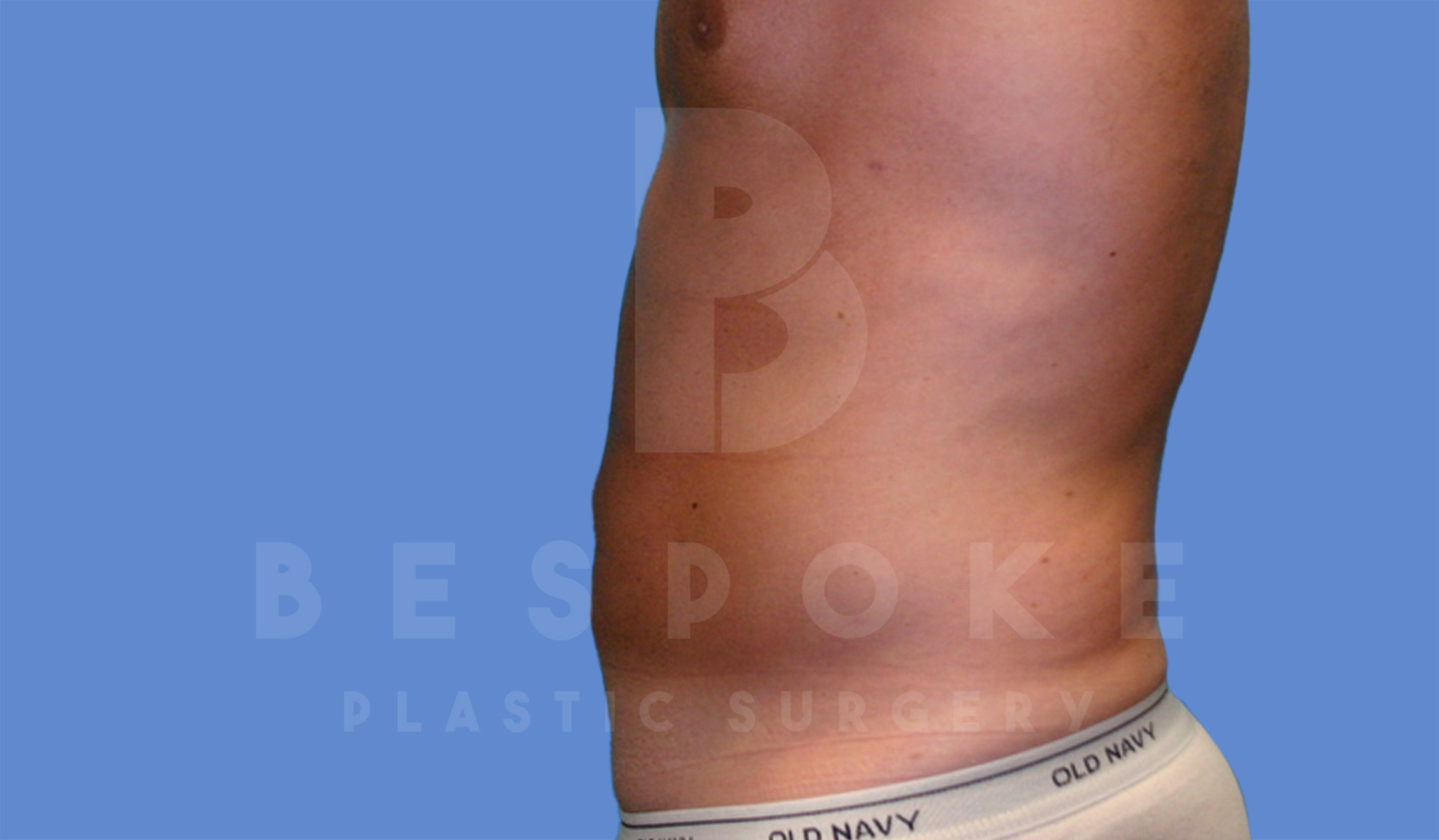 Liposuction Gallery - Patient 4622785 - Image 4