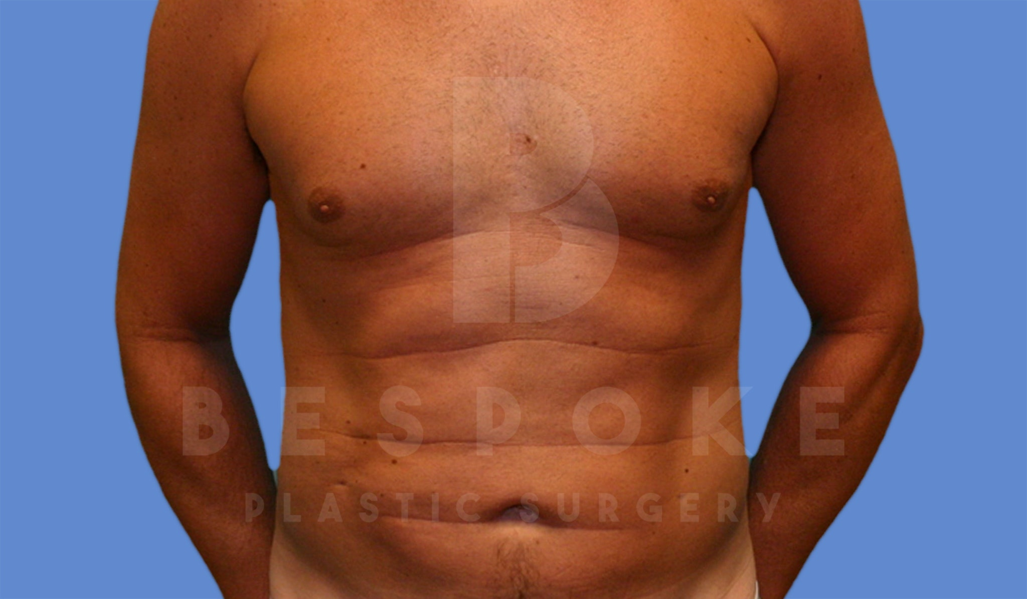 Liposuction Gallery - Patient 4622785 - Image 2