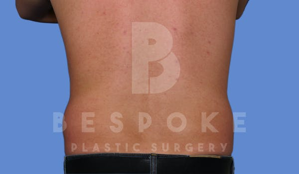 Liposuction Gallery - Patient 4622794 - Image 5