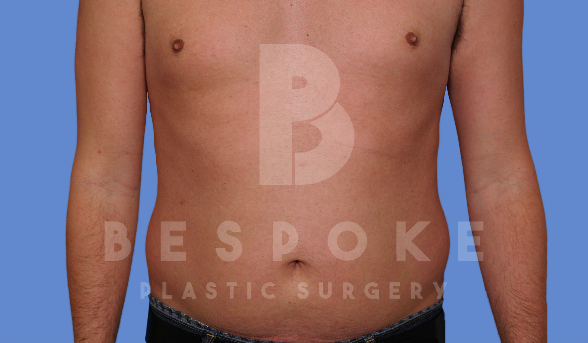 Liposuction Gallery - Patient 4622794 - Image 2