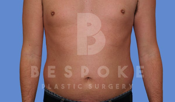 Liposuction Gallery - Patient 4622794 - Image 1