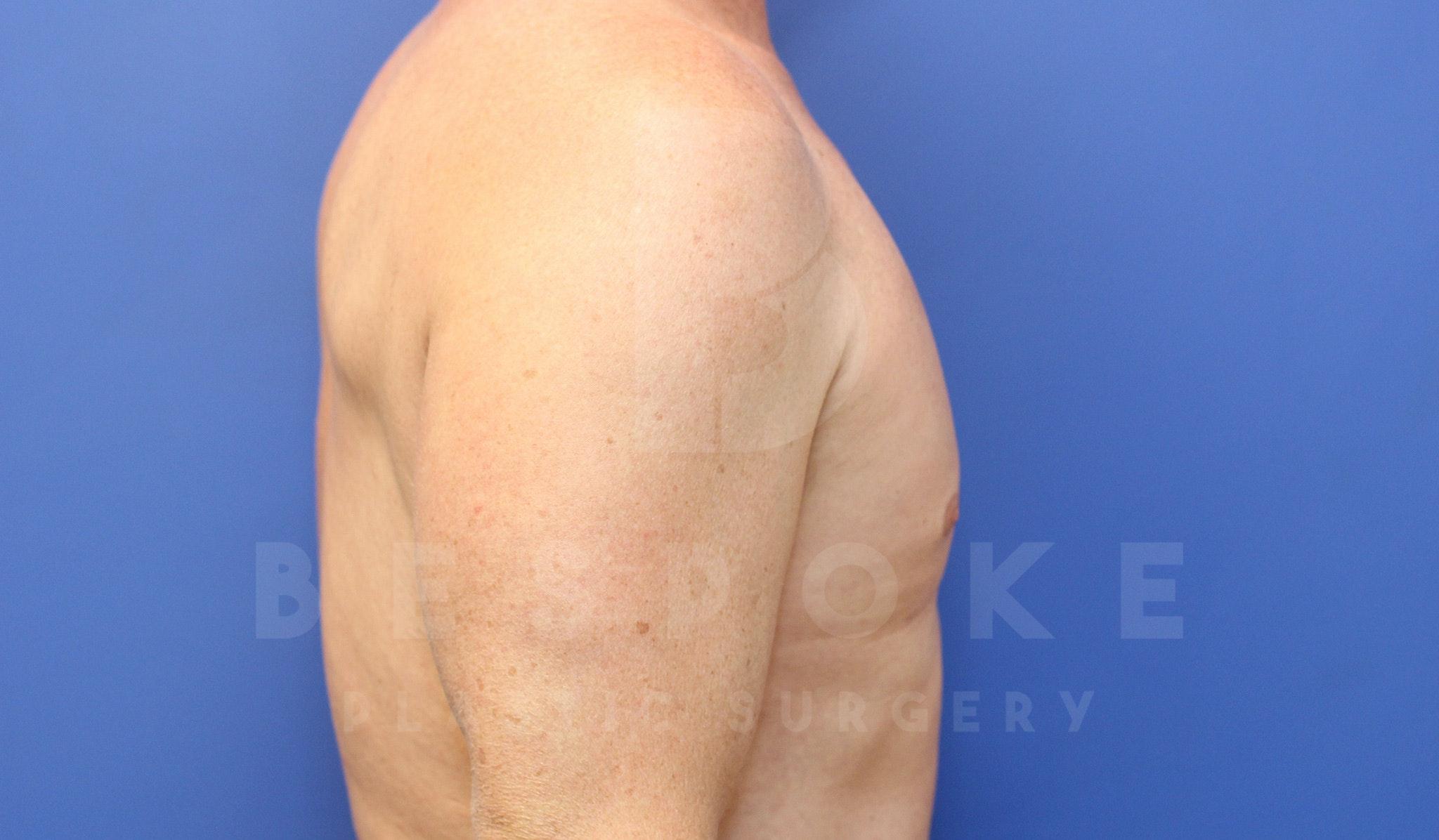 Gynecomastia Gallery - Patient 4622807 - Image 6