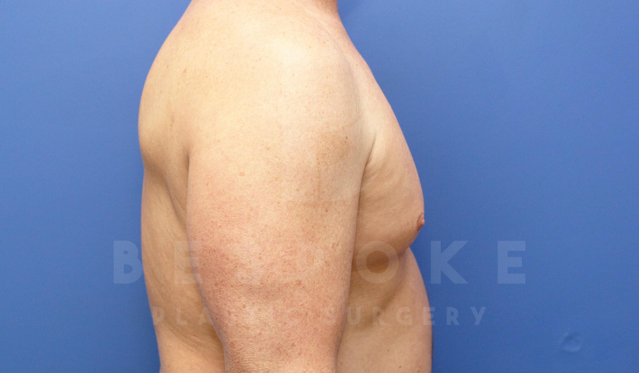 Gynecomastia Gallery - Patient 4622807 - Image 5
