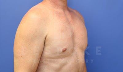 Gynecomastia Gallery - Patient 4622807 - Image 4