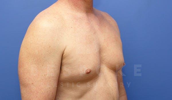 Gynecomastia Gallery - Patient 4622807 - Image 3