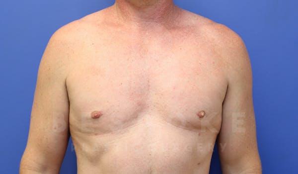 Gynecomastia Gallery - Patient 4622807 - Image 2