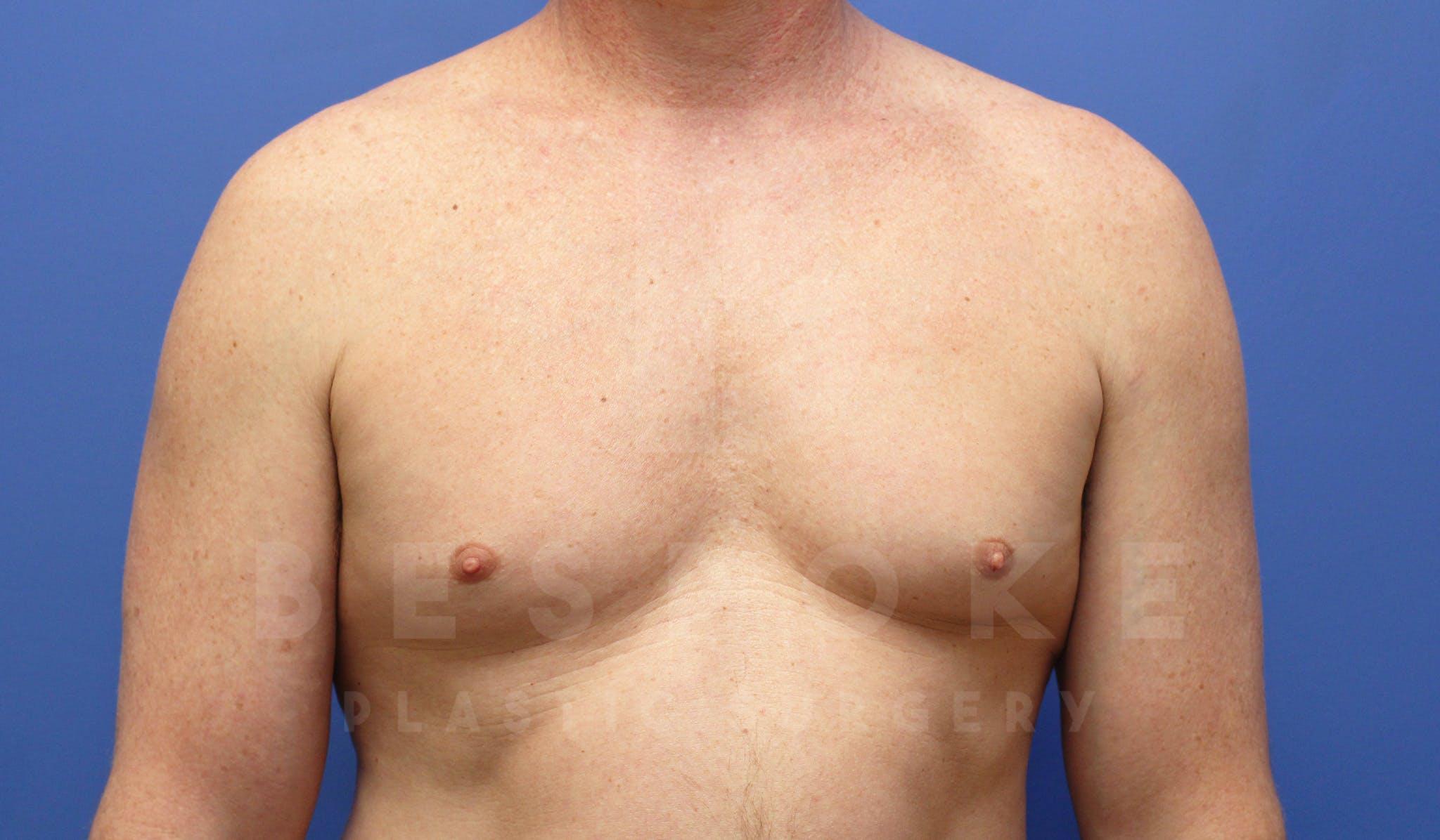 Gynecomastia Gallery - Patient 4622807 - Image 1