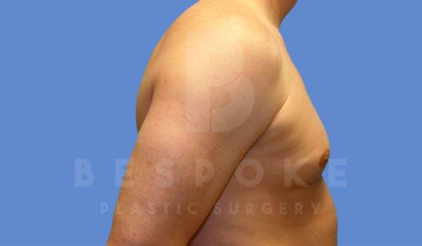 Gynecomastia Gallery - Patient 4622813 - Image 5