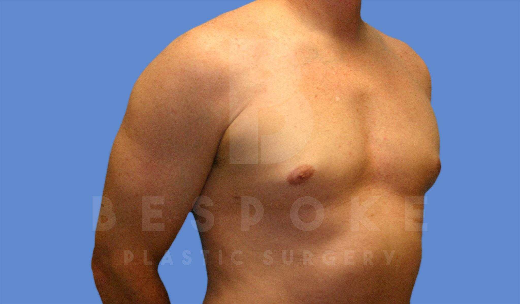 Gynecomastia Gallery - Patient 4622813 - Image 4