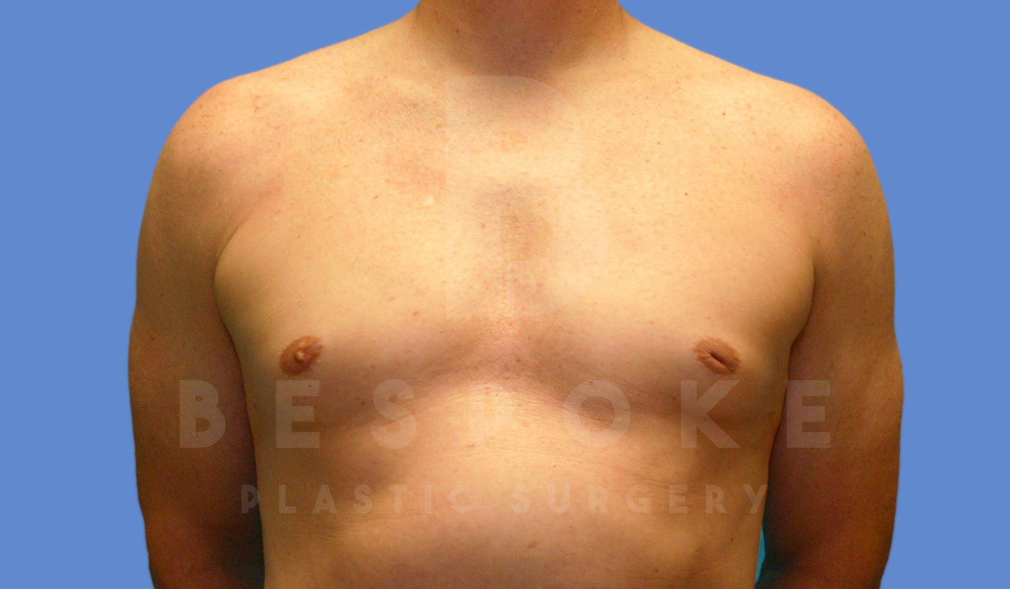 Gynecomastia Gallery - Patient 4622813 - Image 2