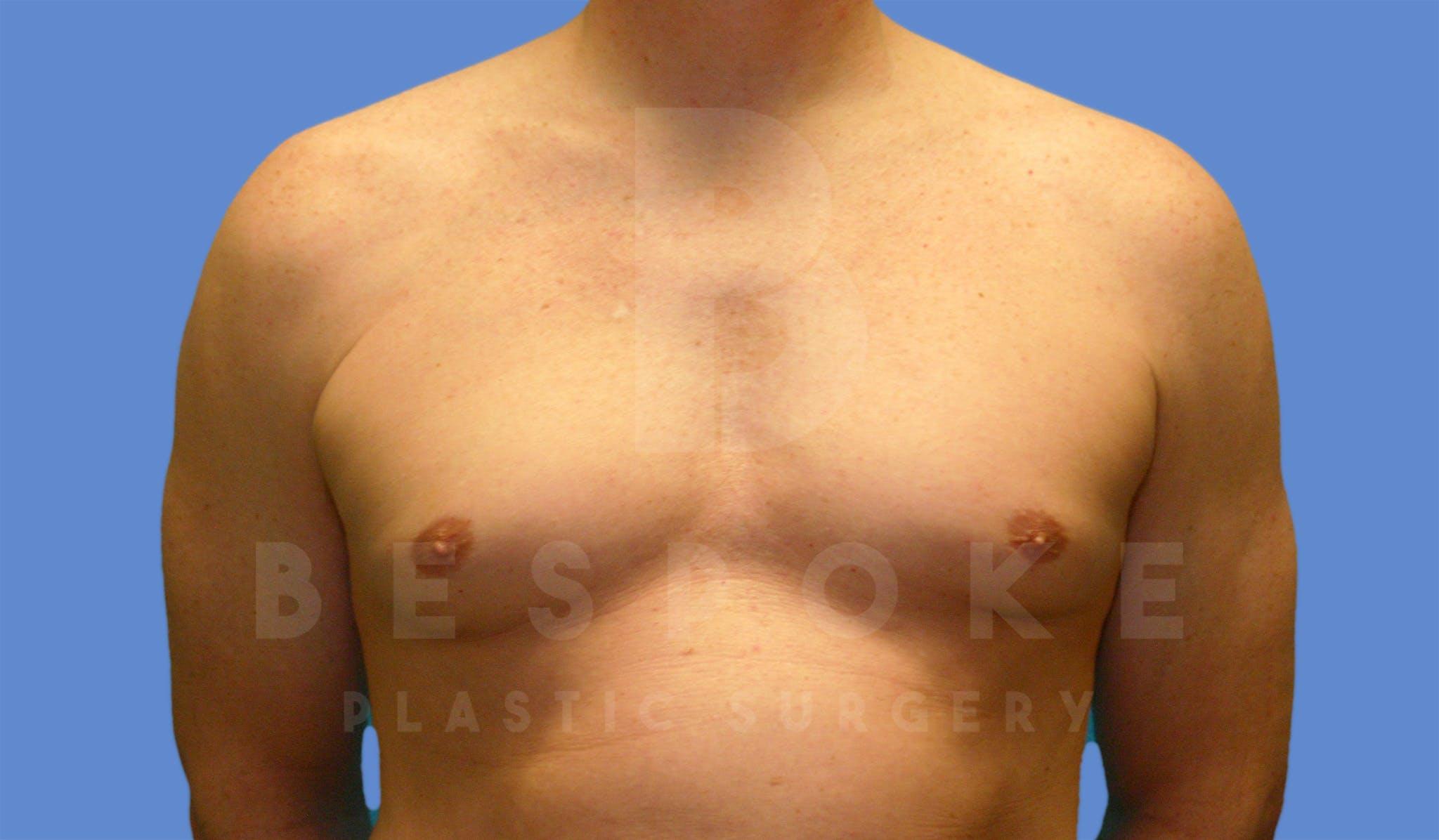 Gynecomastia Gallery - Patient 4622813 - Image 1